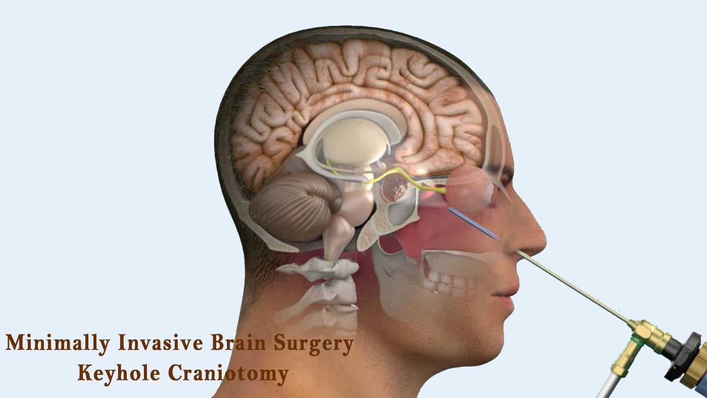 Minimally Invasive Brain Surgery Keyhole Craniotomy